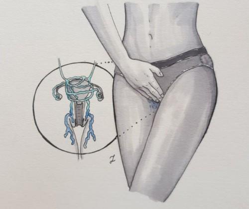 Żylaki miejsc intymnych