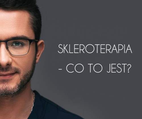 Skleroterapia – co to jest?